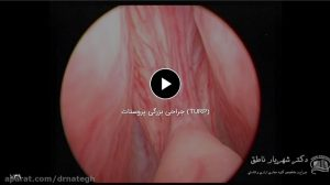 جراحی بزرگی پروستات (TURP)