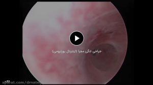 جراحی تنگی مجرا (اینترنال یورترومی)