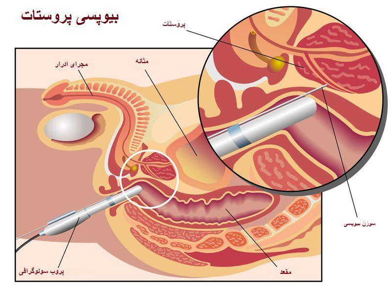 بیوپسی پروستات