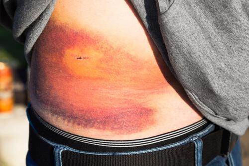 آسیب کلیوی علت خون در ادرار است.