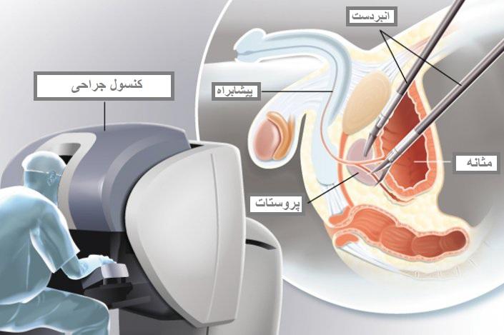 لاپاروسکوپی با کمک ربات