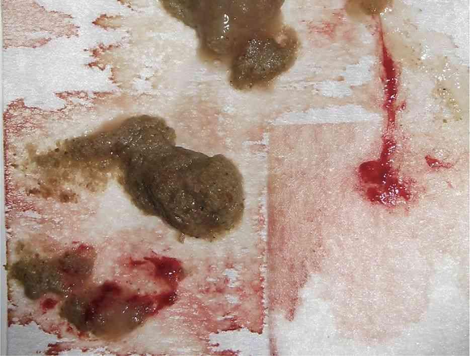 عکس خون در مدفوع
