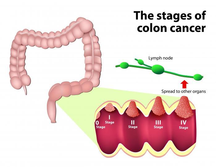سرطان روده عامل خون در مدفوع