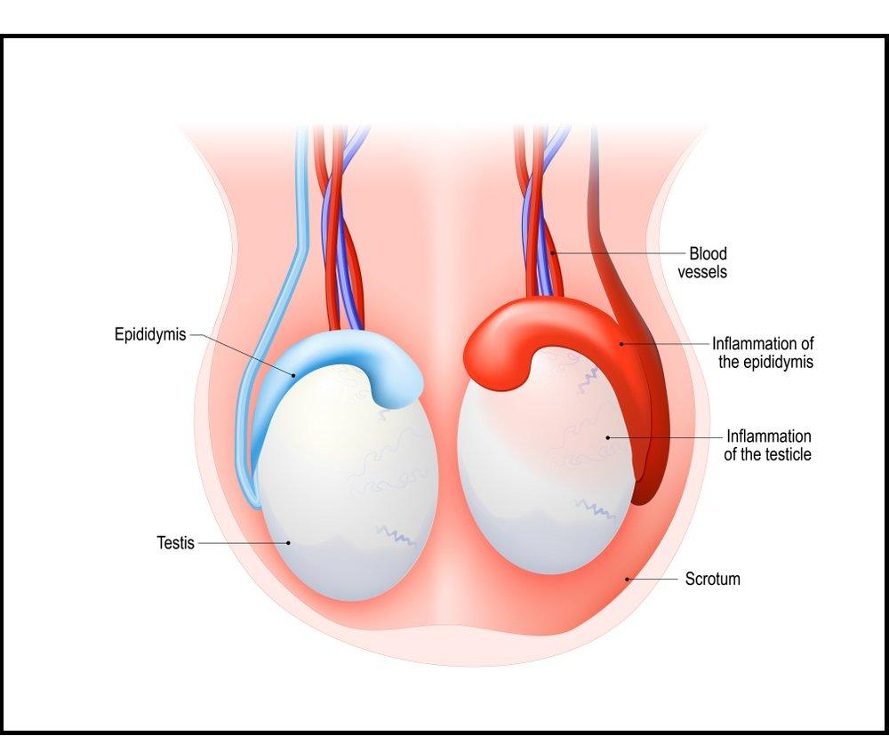 اپیدیدیمیت - التهاب اپیدیدیم
