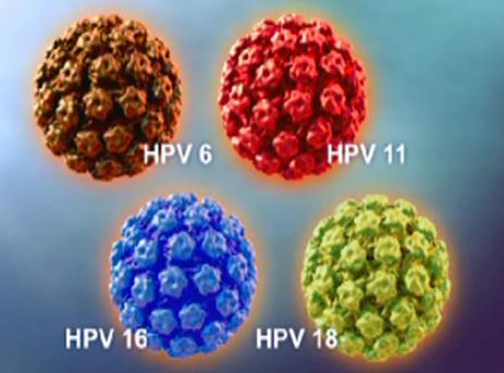 انواع ویروس زگیل