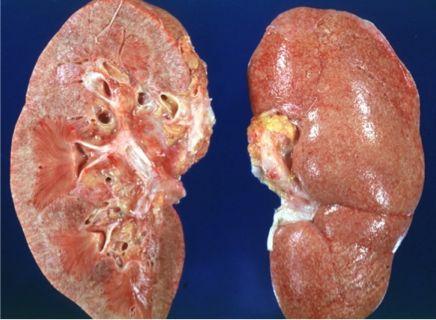 موارد احتیاط قبل از درمان عفونت کلیه با سیپروفلاکسین