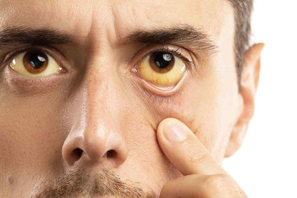 عوارض جانبی سیپروفلاکسین