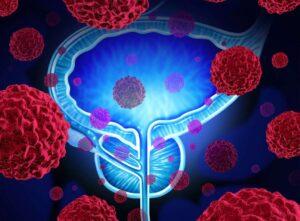 طول عمر بیماران سرطان مثانه